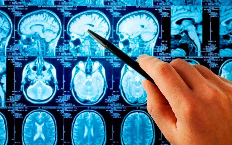 MANIFESTACIONES NEUROLOGICAS POSTINMERSION: ACTITUD PRACTICA